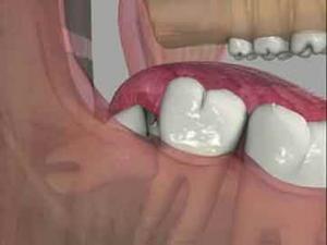 جراحی دندان عقل نیمه نهفته 300x225 - جراحی دندان عقل نیمه نهفته