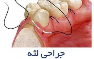 جراحی لثه 320x202 - جراح و دندانپزشک