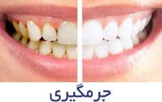 جرمگیری 320x202 - جراح و دندانپزشک