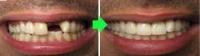 implant1 2 200x56 - گالری ویژه