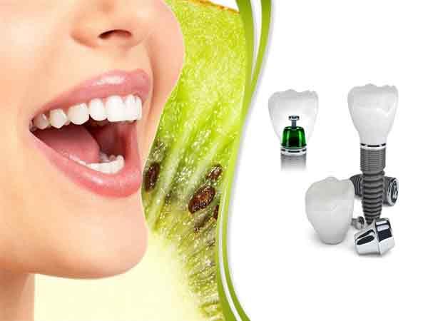 implant2 - جراح و دندانپزشک