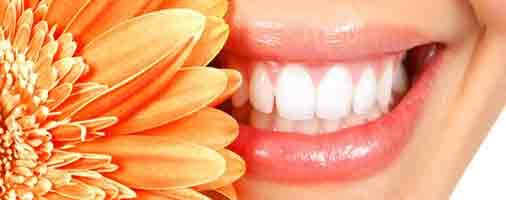 خدمات زیبایی دندانپزشکی در مشهد